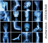collection human joint   skull... | Shutterstock . vector #233136568