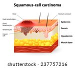 squamous cell carcinoma or... | Shutterstock .eps vector #237757216