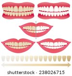 teeth whitening. before and... | Shutterstock .eps vector #238026715