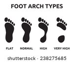 foot arch types | Shutterstock .eps vector #238275685