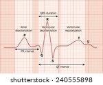 heart ecg  ekg  showing the... | Shutterstock .eps vector #240555898