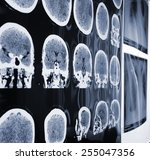 unusual view of the mri  x ray...   Shutterstock . vector #255047356