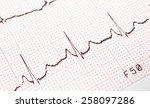 Electrocardiogram  Ecg Printou...