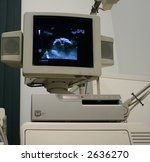 the close up of ultrasound... | Shutterstock . vector #2636270