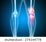 burning knee  painful knee and...   Shutterstock .eps vector #274144778