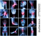 Collection Human Joint And...