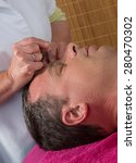 Small photo of Acupuncturist prepares to tap needle around face of man