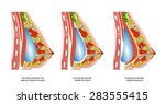 implants in the female breast... | Shutterstock .eps vector #283555415