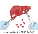 liver operation puzzle concept  ... | Shutterstock . vector #289976045
