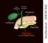 stone pancreatic bile duct. ... | Shutterstock .eps vector #298787342