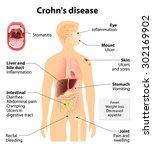 crohn's disease or crohn... | Shutterstock . vector #302169902