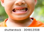 close up child caries | Shutterstock . vector #304813508
