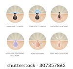 blackheads removing and pore... | Shutterstock .eps vector #307357862
