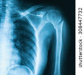 x ray image of shoulder ap view.... | Shutterstock . vector #308447732