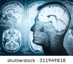 Stock photo conceptual image of a man from side profile showing brain and brain activity retro stale 311949818
