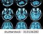 Постер, плакат: MRI of Brain