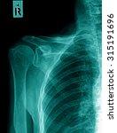 X Ray Of Human Shoulder