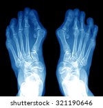 X Ray Of Foot