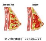 disease female breast cancer | Shutterstock .eps vector #334201796