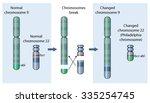 genetic abnormality of... | Shutterstock .eps vector #335254745