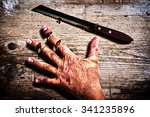 Small photo of Man accidentally cut his fingers