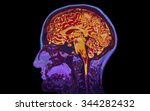 mri image of head showing brain | Shutterstock . vector #344282432