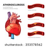 atherosclerosis. fibrous plaque ... | Shutterstock .eps vector #353578562