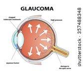 human eye. disease glaucoma.... | Shutterstock . vector #357488348