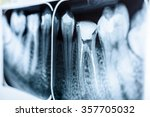 obturation of root canal... | Shutterstock . vector #357705032