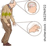 Old Man With Parkinson Symptom...