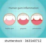 human gum inflammation. eps 10... | Shutterstock .eps vector #363160712