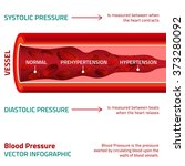 blood pressure infographic | Shutterstock .eps vector #373280092