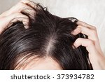 dander that causes itching scalp | Shutterstock . vector #373934782