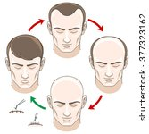 stages of hair loss men ... | Shutterstock .eps vector #377323162