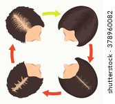 female hair loss stages set.... | Shutterstock .eps vector #378960082