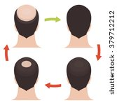 male hair loss pattern stages... | Shutterstock .eps vector #379712212