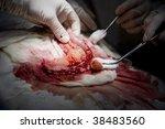 Постер, плакат: Abdominal Surgery small intestine