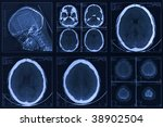 picture of a tomography of a... | Shutterstock . vector #38902504