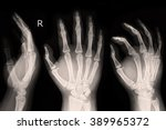 X Ray Show Right Hand