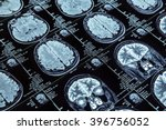 magnetic resonance imaging | Shutterstock . vector #396756052