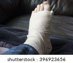 broken  fractured or sprained... | Shutterstock . vector #396923656
