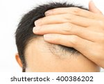 young man worry hair loss... | Shutterstock . vector #400386202