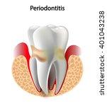 vector image tooth ...   Shutterstock .eps vector #401043238