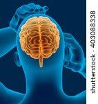headache x ray scan of human... | Shutterstock . vector #403088338