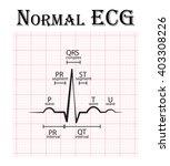 Normal Ecg  Electrocardiogram ...