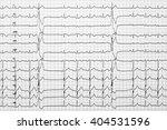 extrasystoles on... | Shutterstock . vector #404531596