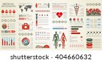 medical infographic vector... | Shutterstock .eps vector #404660632