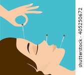 acupuncture session. young...   Shutterstock .eps vector #405250672