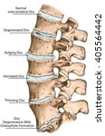 spine disc problems ... | Shutterstock . vector #405564442