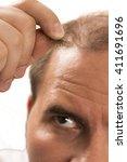 Small photo of Baldness Alopecia man hair loss isolated